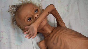 glodujace-dziecko-w-jemenie