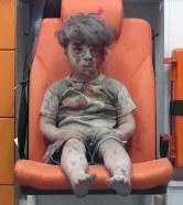5-letni Omran Daqneesh z Aleppo – instrument cynicznej, medialnej manipulacji (autor: Mahmoud Raslan)